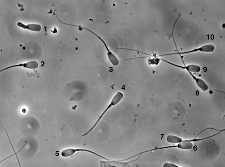 Spermie v ejakuláte