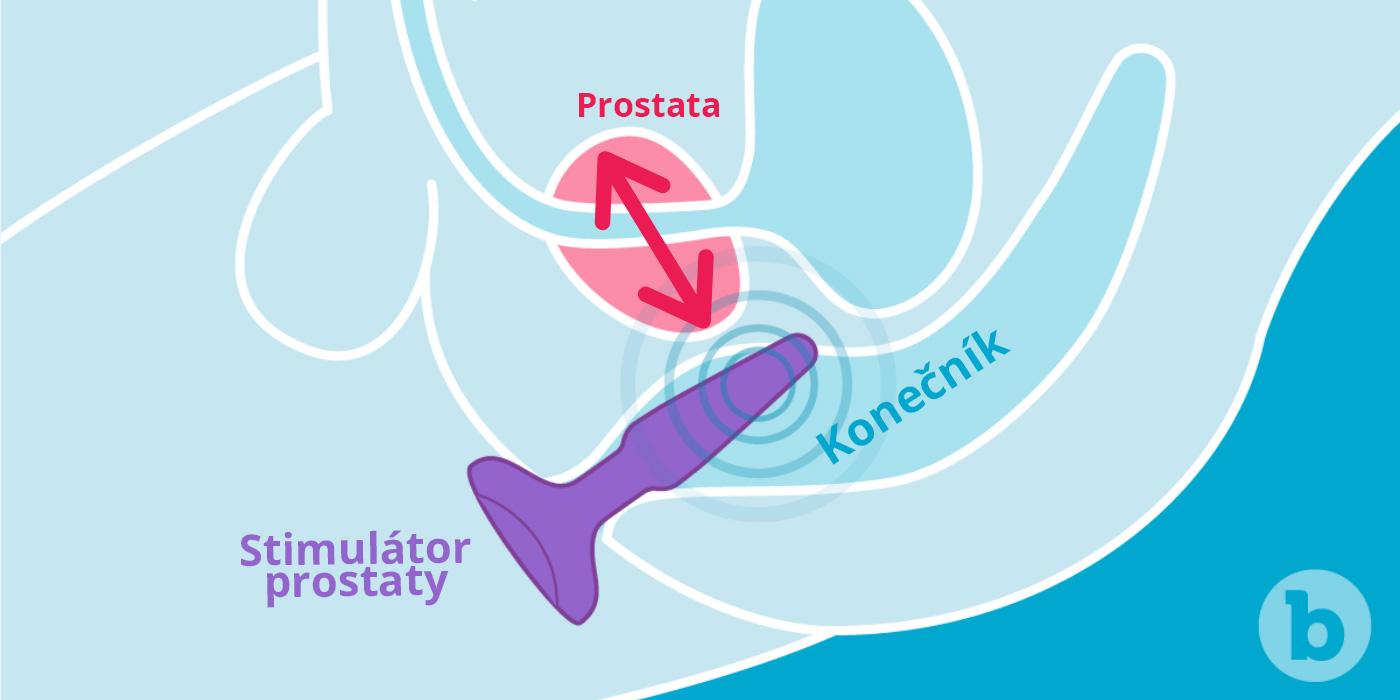 Stimulácia prostaty, ako na ňu