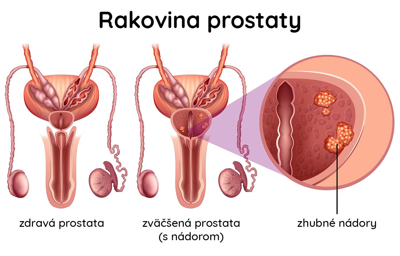 Zdravá a zväčšená prostata